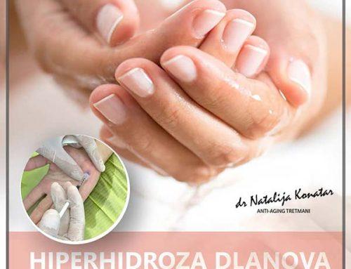 HIPERHIDROZA DLANOVA – BOTOX terapija protiv pojačanog znojenja dlanova