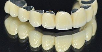 stomatološka protetika 2