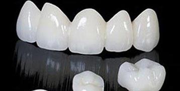stomatološka protetika