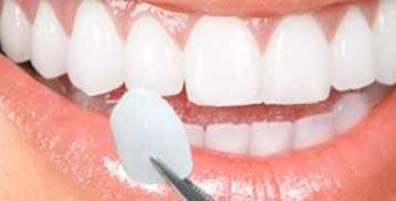 stomatološka protetika 3