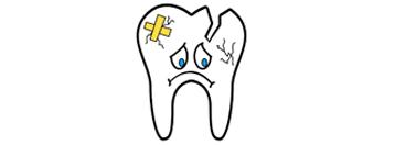 vađenje mliječnih zuba