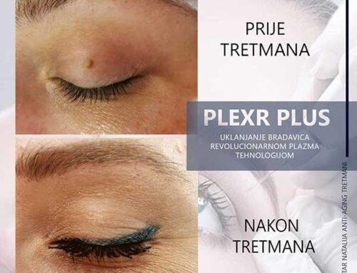 PLEXR PLUS – prvi originalni aparat plazma tehnologije