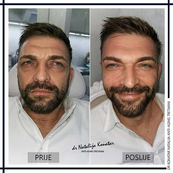 anti aging tretman muškarca