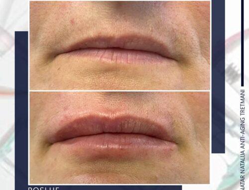 Korekcija asimetrije usana hijaluronom