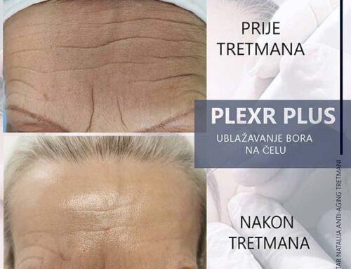 PLEXR PLUS