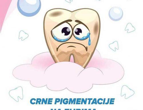 Crne pigmentacije na zubima