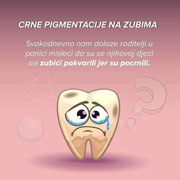 Crne pigmentacije na zubima1