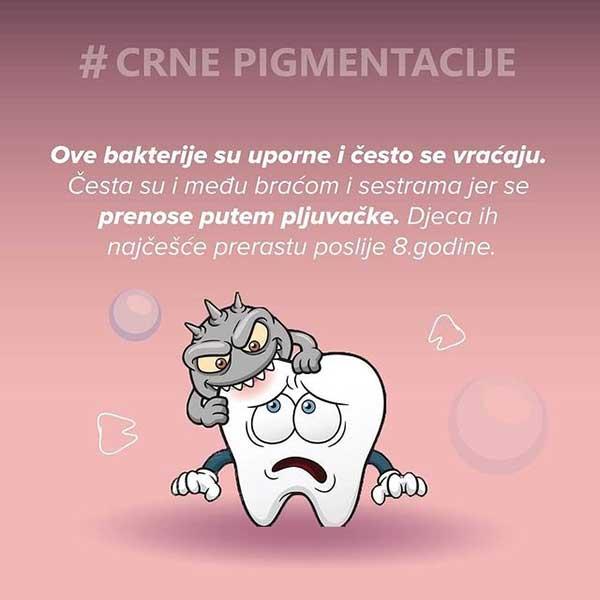 Crne pigmentacije na zubima6