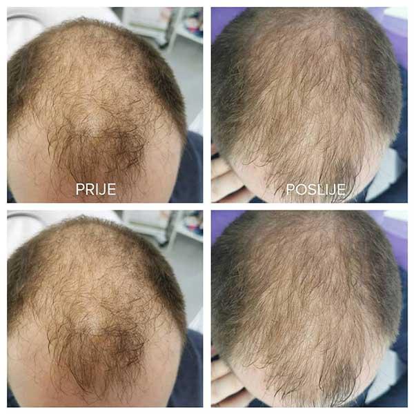 Mezoterapija kose1