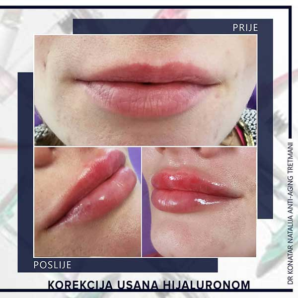 korekcija usana