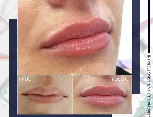 Za savršene usne – korekcija usana hijaluronskim filerima