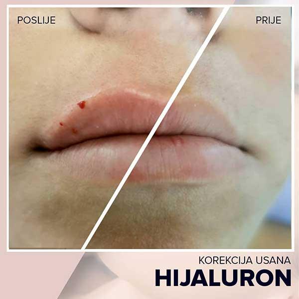 korekcija usana hijaluronom1