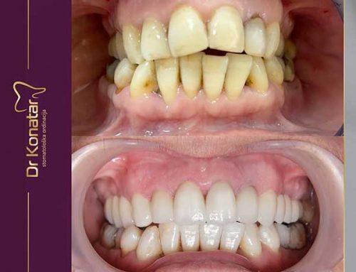 Želite lijepe zube ali da ih što manje brusite?