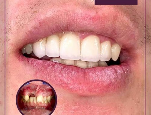 Redovno posjećujte stomatologa