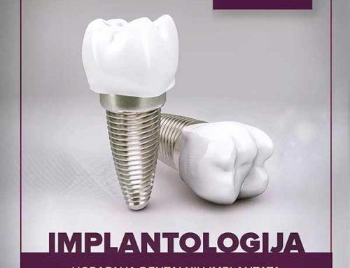 Implantologija – ugradnja dentalnih imlantata